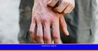 Cómo lidiar con la dermatitis atópica en otoño-invierno