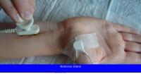 El implante cerebral que restaura el contacto con los dedos en pacientes con neuropatía periférica