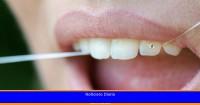 Joyas dentales, la moda que puede poner tus dientes en grave riesgo