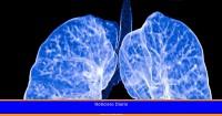 La ciencia descubre cómo diagnosticar el cáncer de pulmón un año antes
