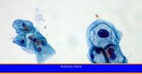 ¿Qué es el virus del papiloma humano? Así se transmite y estos son sus síntomas