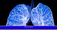 Un estudio aclara el origen del cáncer de pulmón en no fumadores